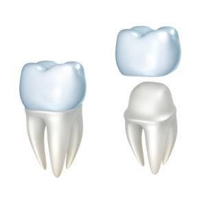 Dental Crowns West Oaks - Dr Micheal Tran - FLOSS Dental - West Oaks Houston